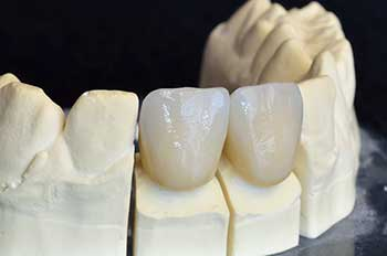 Dental Crowns in Rancho Mission Viejo
