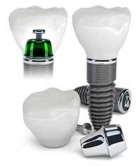 Dental Implants in Ladera Ranch