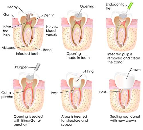 Root Canal in Rancho Mission Viejo