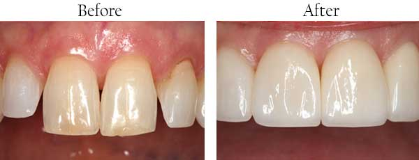 Before and After Dental Gallery Rancho Mission Viejo