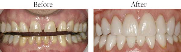 Before and After Dental Gallery 92694